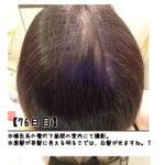利尻カラーシャンプーを使い始めて78日目の画像です、白髪は目立たなくなりました。